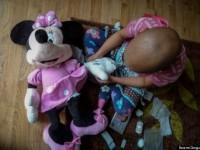 Η 5χρονη Zofeya πάσχει από καρκίνο