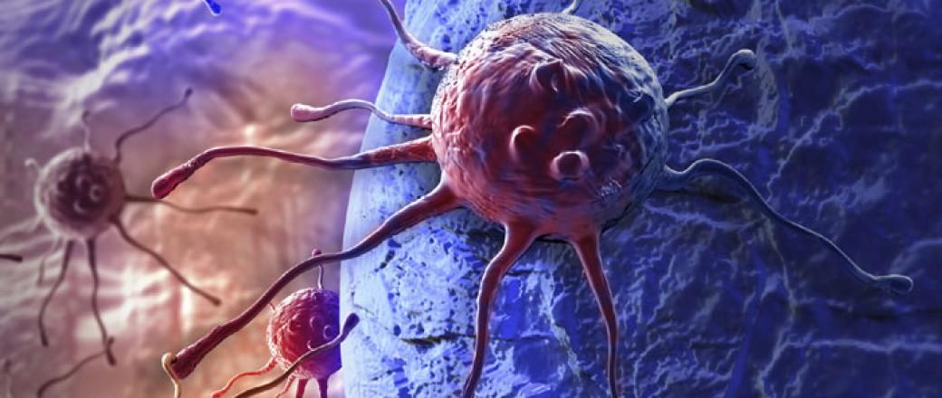 «Πεινασμένα» καρκινικά κύτταρα μπορούν να εμποδίσουν την ανάπτυξη νέων όγκων