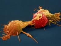 Μονοκλωνικά αντισώματα στη μάχη κατά των αιματαλογικών κακοηθείων