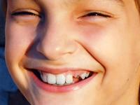 """Προστατεύουμε τα δόντια μας από τους γλυκούς """"πειρασμούς"""""""