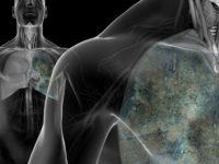 Ο καρκίνος του πνεύμονα