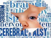 Εγκεφαλική πάρεση στα παιδιά