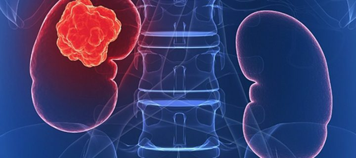 Νέες «επιλογές» για τους ασθενείς με καρκίνο του νεφρού