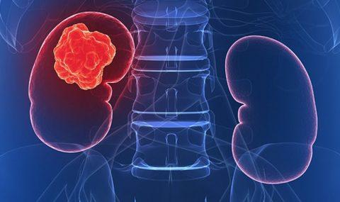 Τι είναι το νεφροκυτταρικό καρκίνωμα;