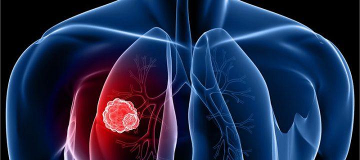 Το pembrolizumab σε συνδυασμό με  χημειοθεραπεία επέκτεινε σημαντικά την επιβίωση και σταμάτησε την εξέλιξη της νόσου σε ασθενείς με καρκίνο του πνεύμονα