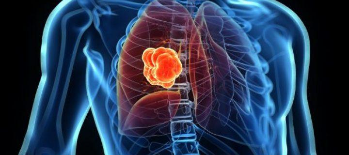 Επιβίωση χωρίς εξέλιξη της νόσου (PFS) σε ασθενείς με καρκίνο του πνεύμονα