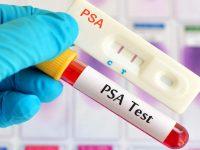 Τι είναι το PSA;