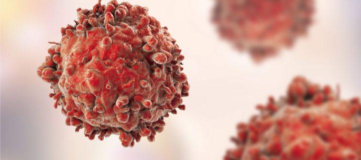 Έλληνες επιστήμονες ανακάλυψαν την πρωτεινή Chmp4c που εξοντώνει τα καρκινικά κύτταρα