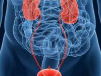 Τι πρέπει να γνωρίζετε για τον καρκίνο της κύστης