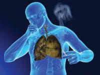 Νέα δεδομένα αλλάζουν το «τοπίο» στην αντιμετώπιση του καρκίνου του πνεύμονα