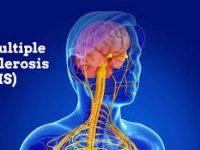 Δωρεάν κλινική εξέταση από το ΙΑΣΩ General για την  Παγκόσμια Ημέρα Σκλήρυνσης κατά Πλάκας