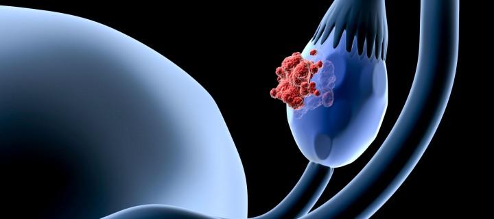 HPV Test και ο προσυμπτωματικός έλεγχος