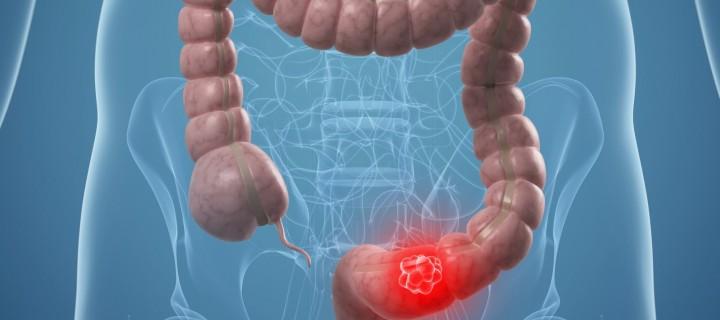 Καινοτόμα θεραπεία για τον Καρκίνο του Παχέος Εντέρου