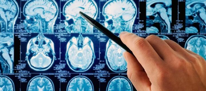 «Ιατρική επανάσταση» φέρνει κλινική δοκιμή κατά όγκου του εγκεφάλου!