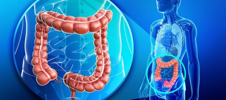 Ασπίδα ο υγιεινός τρόπος ζωής για τον Καρκίνο Παχέος Εντέρου