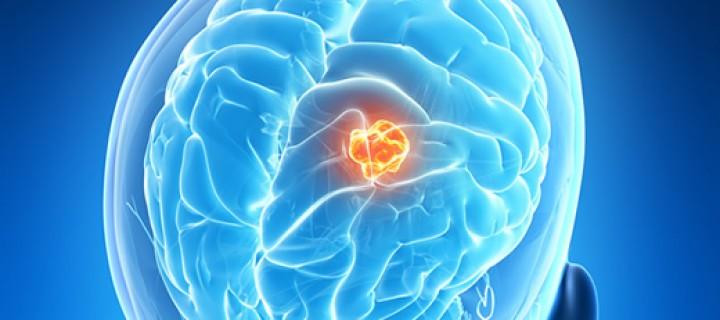 Νέα πειραματική δοκιμή για τον καρκίνο εγκεφάλου