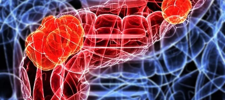 Παγκρεατικοί νευροενδοκρινείς όγκοι: πιθανή θεραπεία με αναστολή μίας πρωτεΐνης;