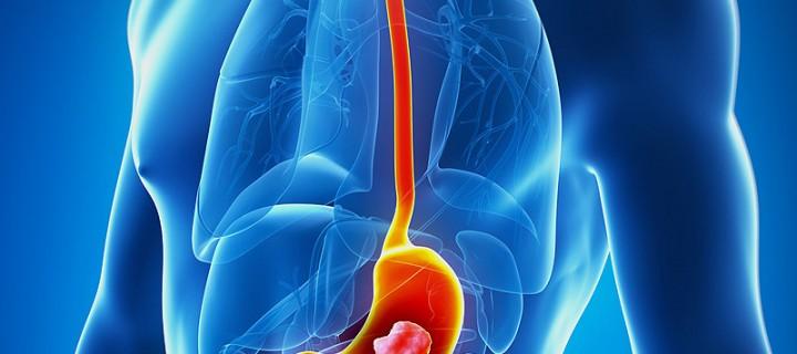 Καρκίνος του στομάχου: Μπορούμε να τον αποφύγουμε;