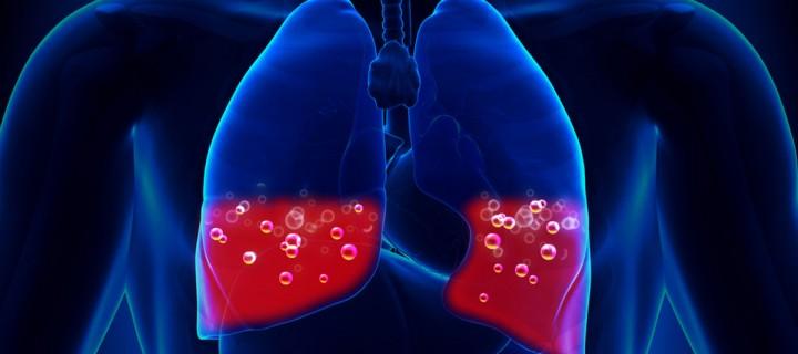 Πρωτοφανής και αντιεπιστημονικός αποκλεισμός των ασθενών με ήπια – μέτρια Ιδιοπαθή Πνευμονική Ίνωση