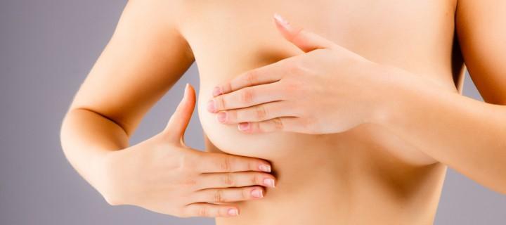 """Με επιτυχία η  """"Κίνηση «μαστ»… για τον καρκίνο του μαστού"""",  στην Αλεξανδρούπολη"""