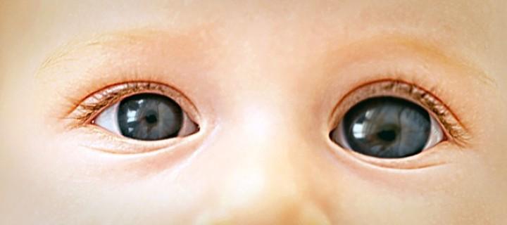 Γλαύκωμα παιδικής ηλικίας: Βρέθηκε το γονίδιο της κληρονομικής μορφής στα μωρά