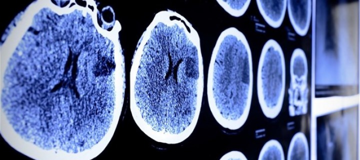 Ατροφία Εγκεφάλου