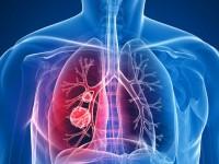 Μεγαλύτερη επιβίωση για τους χειρουργημένους ηλικιωμένους ασθενείς με καρκίνο του πνεύμονα