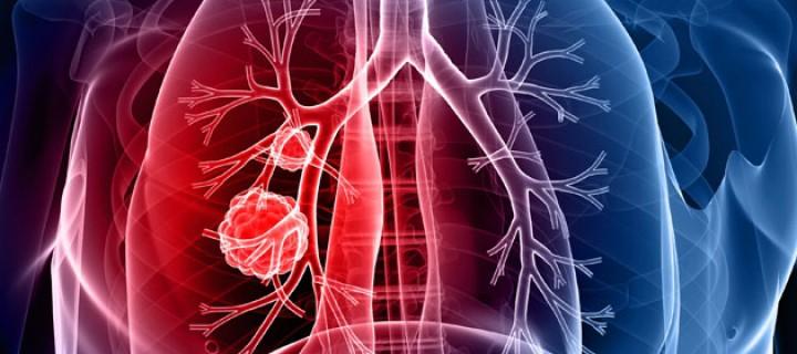 Υπεροχή του pembrolizumab  κατά του Καρκίνου του Πνεύμονα