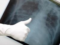 Ο Οργανισμός Τροφίμων και Φαρμάκων των ΗΠΑ (FDA) ενέκρινε το atezolizumab για την αντιμετώπιση του Μεταστατικού Μη Μικροκυτταρικού Καρκίνου του Πνεύμονα