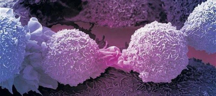 Το carfilzomib παρατείνει σημαντικά τη συνολική επιβίωση για το υποτροπιάζον ή ανθεκτικό πολλαπλό μυέλωμα.