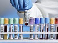 Πειραματικό τεστ αίματος μπορεί να ανιχνεύσει έγκαιρα τον καρκίνο