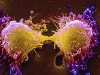 Επιστήμονες χρονολογούν το ιστορικό του καρκίνου
