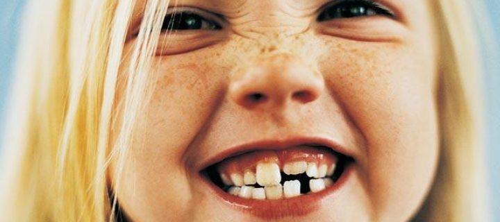 Κακή σύγκλειση των δοντιών: είναι θέμα γονιδίων ή φταίει κάτι που εμείς κάνουμε;