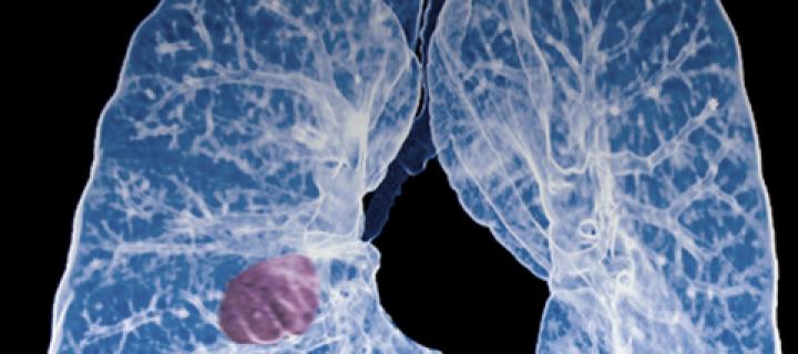 Η ανοσοθεραπεία αποτελεί μια καινοτόμο θεραπευτική αγωγή στην αντιμετώπιση του προχωρημένου καρκίνου του πνεύμονα