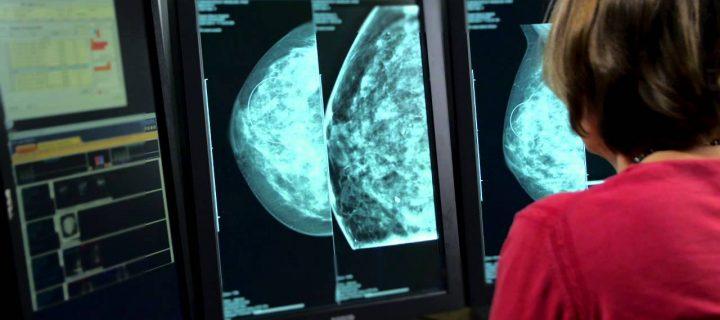 Νέο φάρμακο για προχωρημένο καρκίνο του μαστού