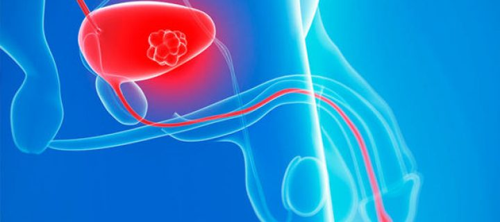 Με επιτυχία πραγματοποιήθηκε η Επιστημονική Ημερίδα για τον Καρκίνο του Ουρογεννητικού Συστήματος της Ελληνικής Ομοσπονδίας Καρκίνου