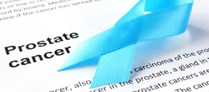 Ακίνδυνη η θεραπεία υποκατάστασης με τεστοστερόνη για τον Καρκίνο του Προστάτη
