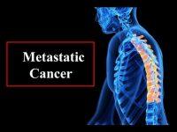 Αυξάνεται η παγκόσμια αγορά θεραπείας μεταστατικού καρκίνου
