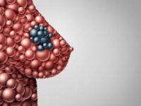 Οι γυναίκες με πυκνούς μαστούς διατρέχουν αυξημένο κίνδυνο εκδήλωσης καρκίνου;