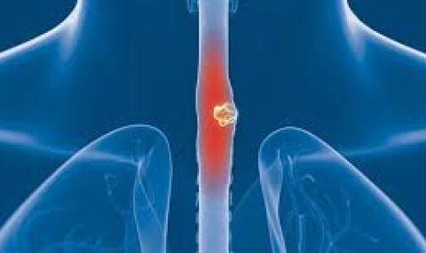 Η χειρουργική επέμβαση της Γαστροοισοφαγικής Παλινδρόμησης μειώνει τον κίνδυνο οισοφαγικού καρκίνου