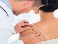 Ανοσοκατασταλτικό φάρμακο συνδέεται με τον καρκίνο του δέρματος