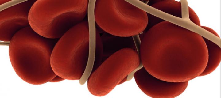 Εντυπωσιακά τα ευρήματα της Ευρωπαϊκής Έρευνας της ECPC  για την σχετιζόμενη με τον Καρκίνο φλεβική Θρόμβωση!