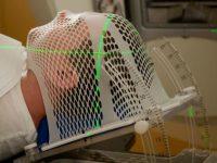 Το PseudoPatient της RTsafe κάνει την ακτινοθεραπεία του εγκεφάλου πολύ ασφαλέστερη