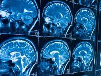 Νέα υποσχόμενη θεραπεία για τον καρκίνο του εγκεφάλου της παιδικής ηλικίας