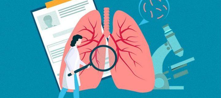 Σχέδιο Δράσης για τον Καρκίνο του Πνεύμονα